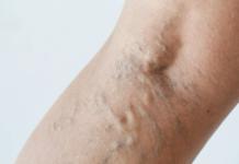 4 astuces et conseils pour éviter les varices