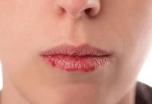 remèdes lèvres gercées