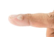remède pour une brûlure au doigt