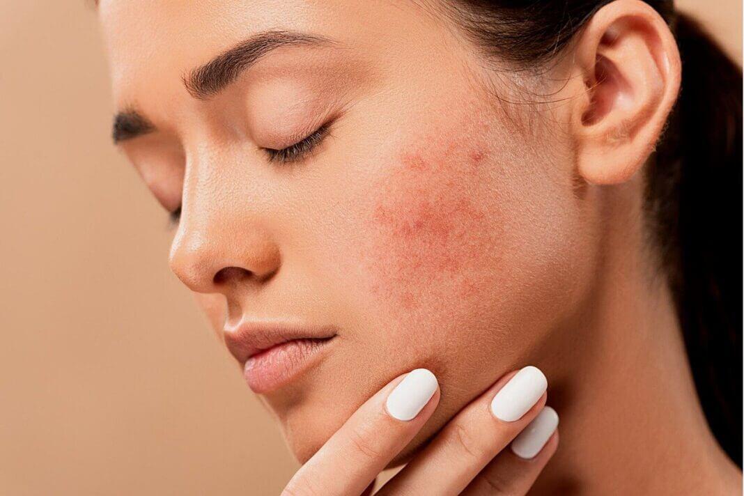cicatrices d'acné remèdes