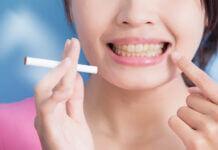 ne plus avoir des dents jaunes