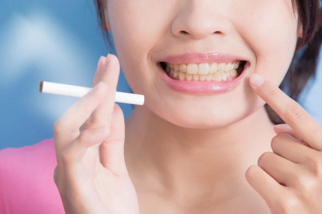 comment ne plus avoir les dents jaunes