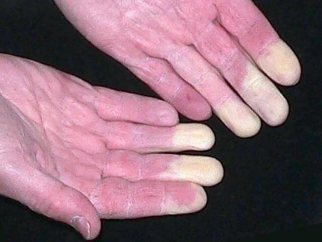 Remède naturel pour soigner la maladie de Raynaud - Grands