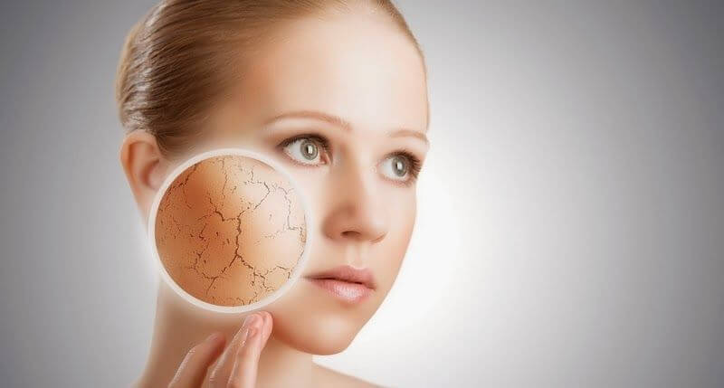 soigner la peau sèche