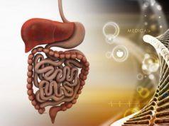 maladie de Crohn