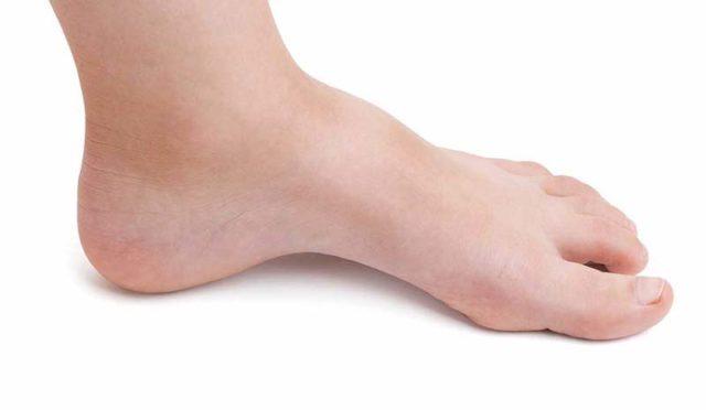 remèdes pour des pieds