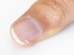 remèdes de grand-mère durcir ses ongles