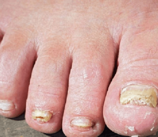 soigner mycose des ongles javel