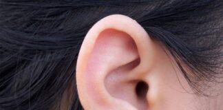 Points noirs dans les oreilles