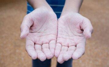 crevasses aux mains