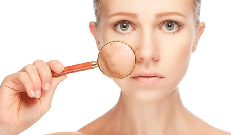 nettoyer une peau grasse remèdes