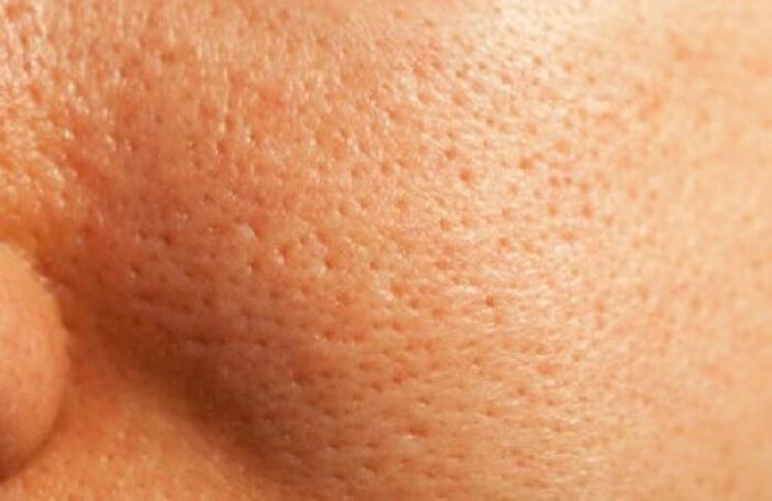 Resserrer les pores du visage